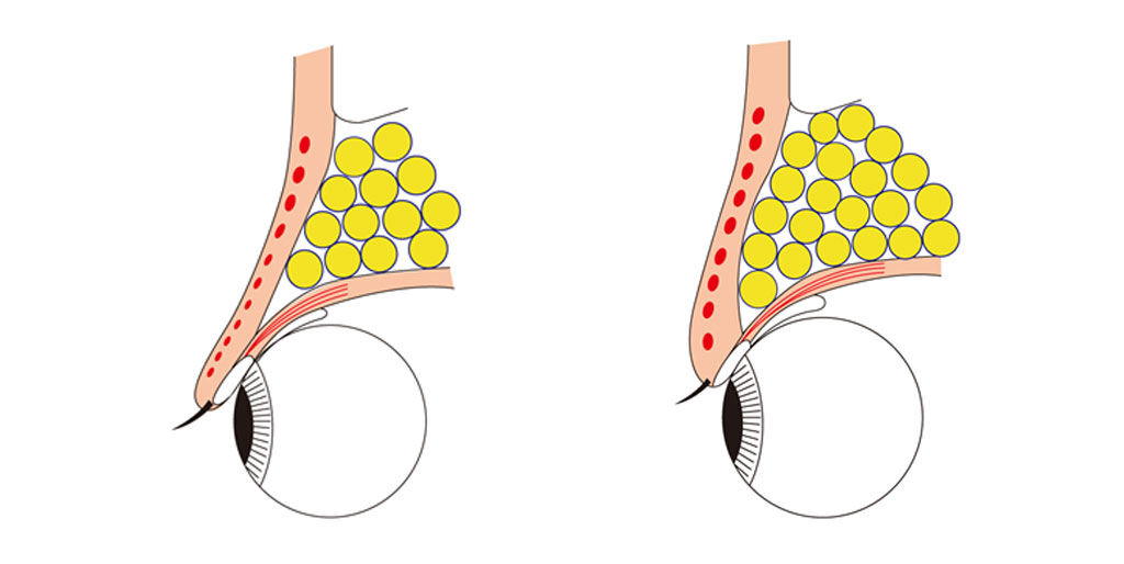 二つの眼の断面図
