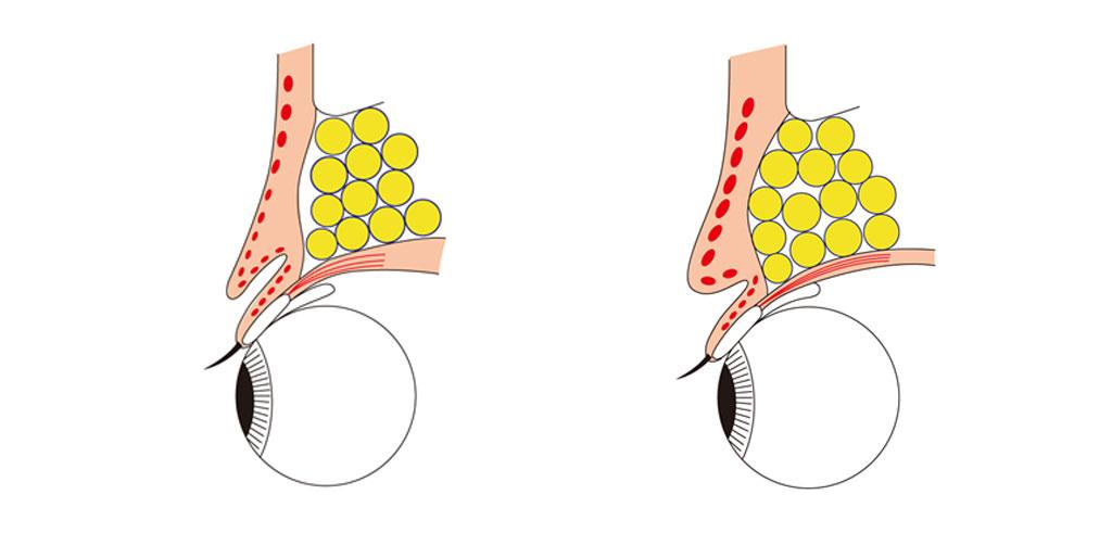 二つの眼の断面図(左側がすっきりした二重。右側は厚ぼったい二重)