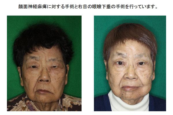 顔面神経麻痺と右目眼瞼下垂の手術前後