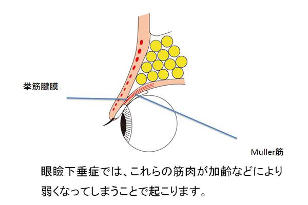 眼瞼下垂症