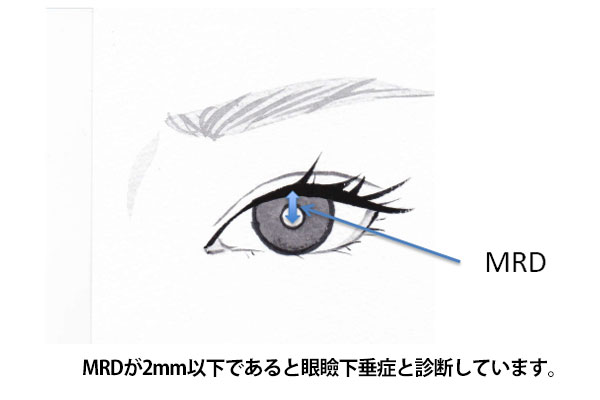 眼瞼下垂の診断基準MRD