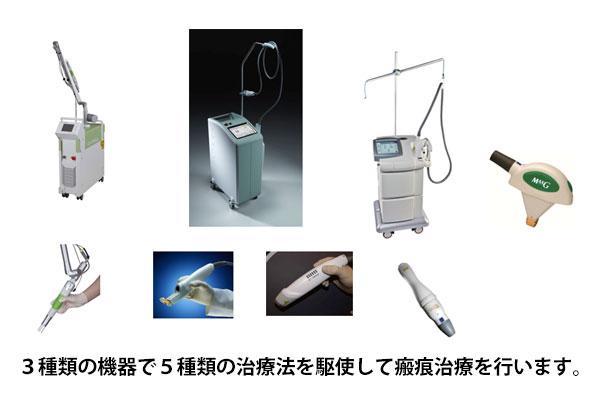 3種類の機器と5種類の治療方法で瘢痕治療