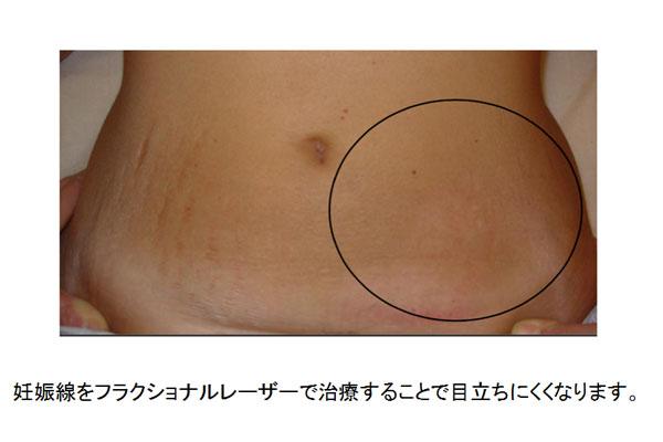 妊娠線をフラクショナルレーザーで治療すると目立ちにくくなります