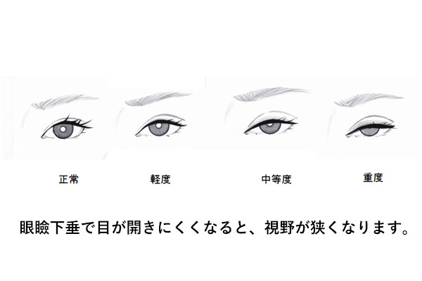眼瞼下垂と視野