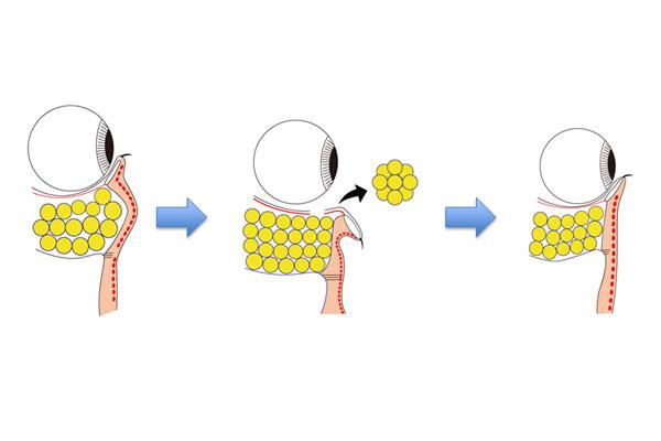経結膜脱脂