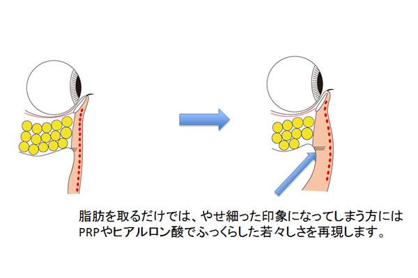経結膜脱脂にヒアルロン酸や脂肪注入併用