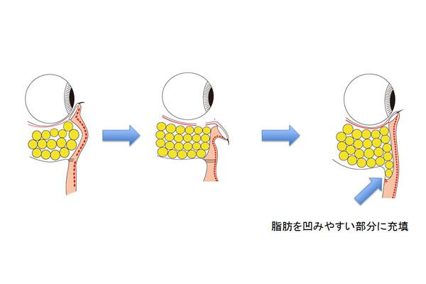 経結膜Hamra法