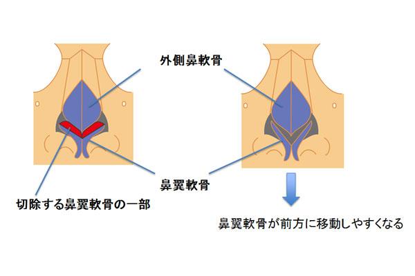 鼻中隔軟骨と一緒に鼻翼軟骨が前方に移動