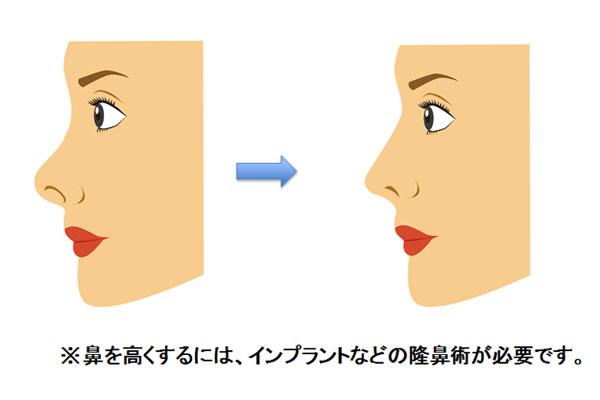 鼻を高くするには、インプラントなどの隆鼻術が必要