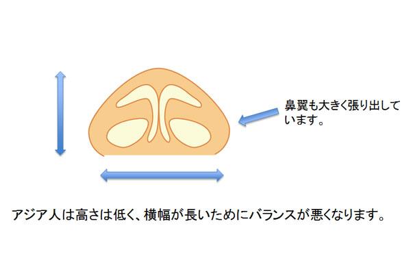アジア人の鼻は高さが低く、横幅が長いためバランスが悪くなります