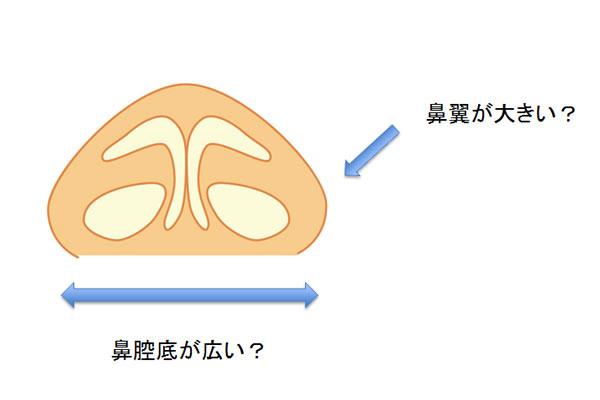 鼻の横幅が大きい方のバランスを整える
