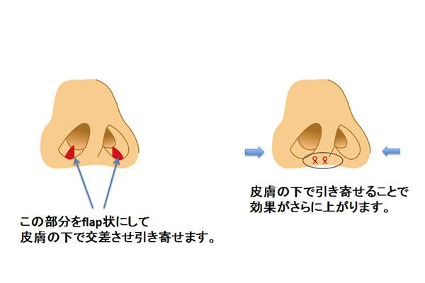 鼻腔底短縮術(flap法)