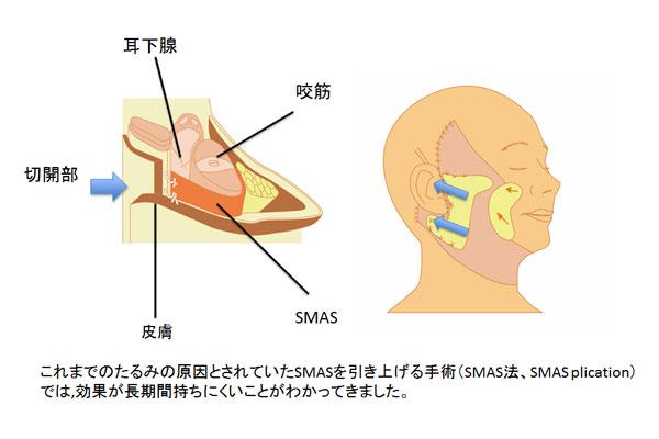 これまでのフェイスリフトはSMASというたるみの原因とされる膜を単純に引き上げる手術では効果が長期間持ちにくい