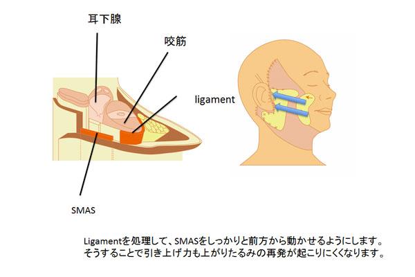 ligamnntを処理して、SMASをしっかり前方から動かせるようにします。それにより引き上げ力も上がり再発が起こりにくくなります