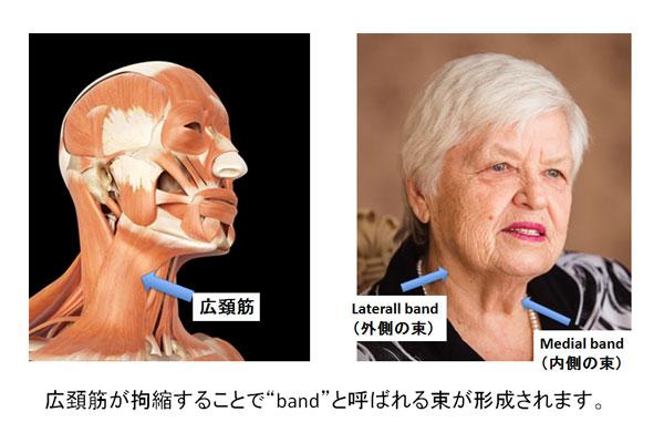 広頚筋が拘縮することでbandと呼ばれる束が形成