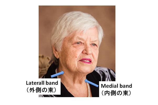 Laterall band(外側の束)とMedial band(内側の束)