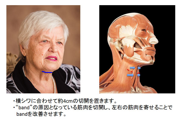 medial neck lift