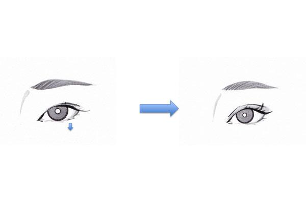 グラマラス形成術(下眼瞼拡大、たれ目形成)