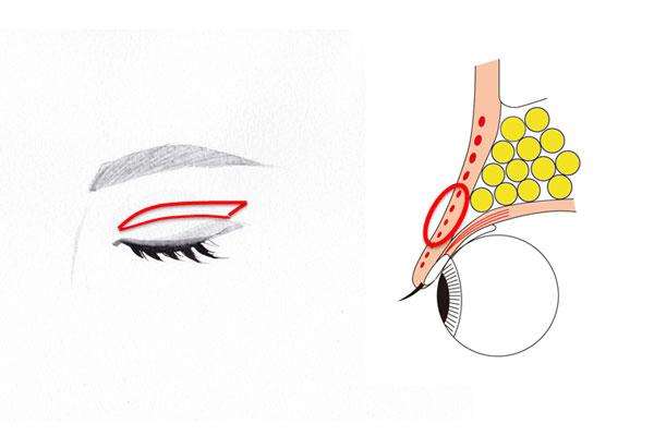 上眼瞼皮膚切除術