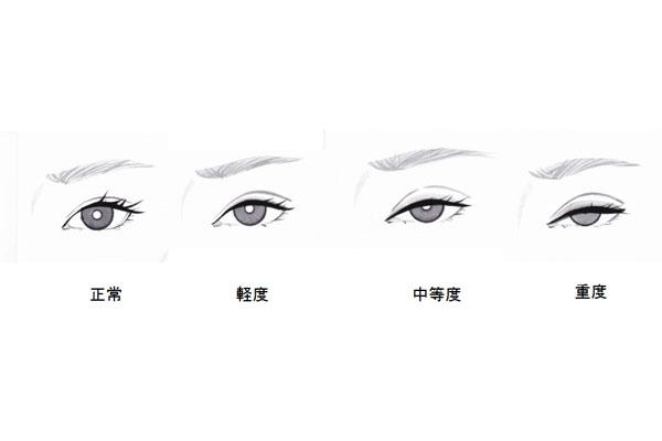眼瞼下垂の重症度
