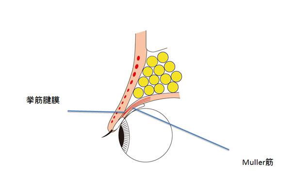 挙筋腱膜とMuller筋