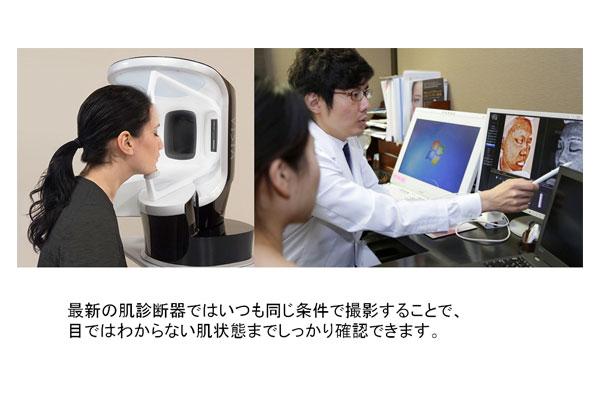 最新の肌診断器で肌の状態を確認