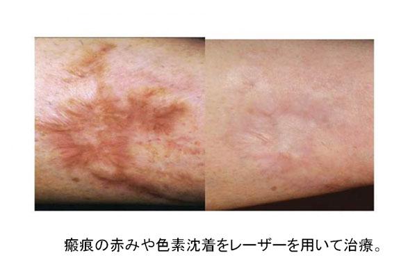 瘢痕の赤みや色素沈着をレーザーを用いて治療