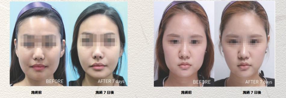 効果が証明された新しくなったBNLS Neoで小顔治療を始めませんか?