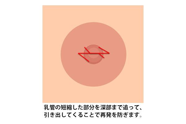 乳管の短縮した部分を深部までおって、引き出してくることで再発防止