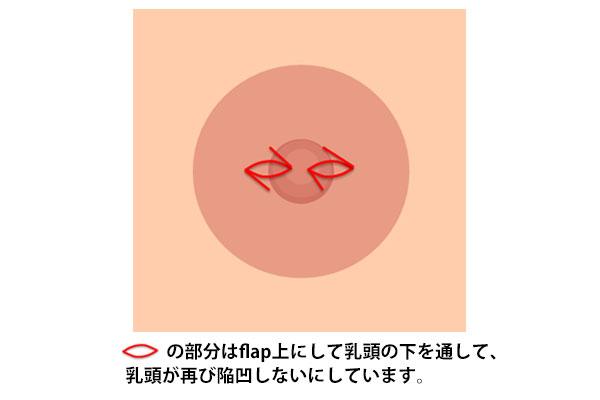 酒井Ⅱ法変法