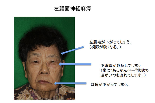 左顔面神経麻痺