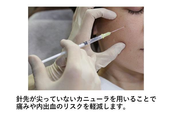 内出血を予防する対策