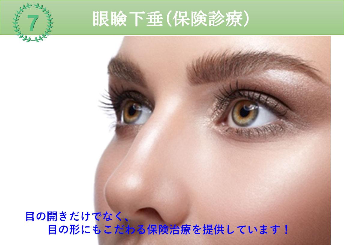 人気施術7位 眼瞼下垂(保険診療)