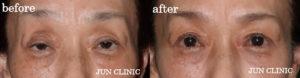 形成外科専門医が行うこだわりの 眼瞼下垂手術
