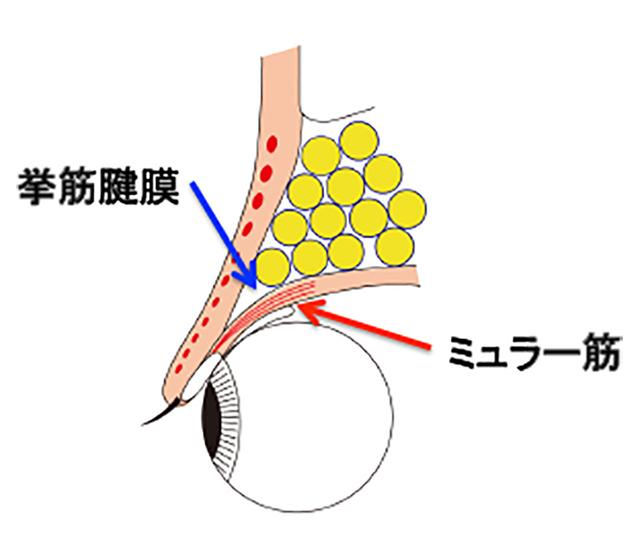 挙筋腱膜とミュラー筋