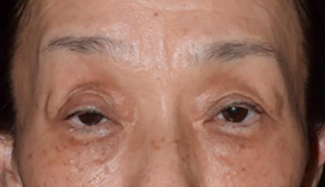 眼瞼下垂のサイン