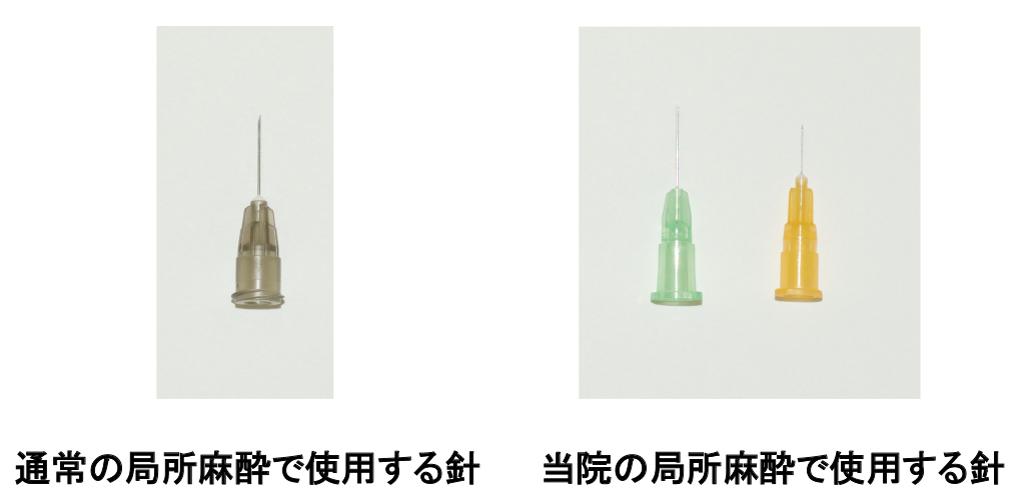 麻酔で使用する針の比較