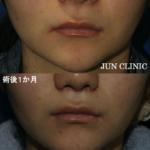 鼻の下の長さに印象に影響を与えるのご存知でしたか??〜人中短縮編〜