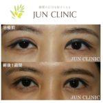 眼瞼下垂(右眼) 30代女性
