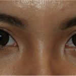 眼瞼下垂後の修正症例