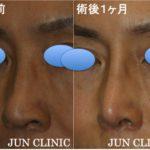 いくつになっても綺麗な鼻に 〜60代 女性 プロテーゼ、鼻尖縮小、軟骨移植、鼻腔底縮小(flap法)〜