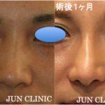 年々増加する鼻症例の紹介(鼻中隔延長、鼻尖縮小、軟骨移植、プロテーゼ、鼻翼縮小)