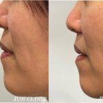 上口唇短縮(リップリフト)症例 & お盆の手術予約はお早めに( ^ ^ )/□