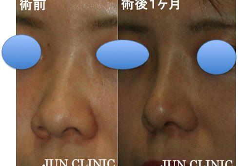 鼻 症例2 斜め