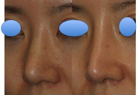 鼻 症例1 斜め